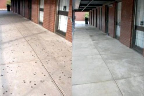 gum removal_before and after Knoxville